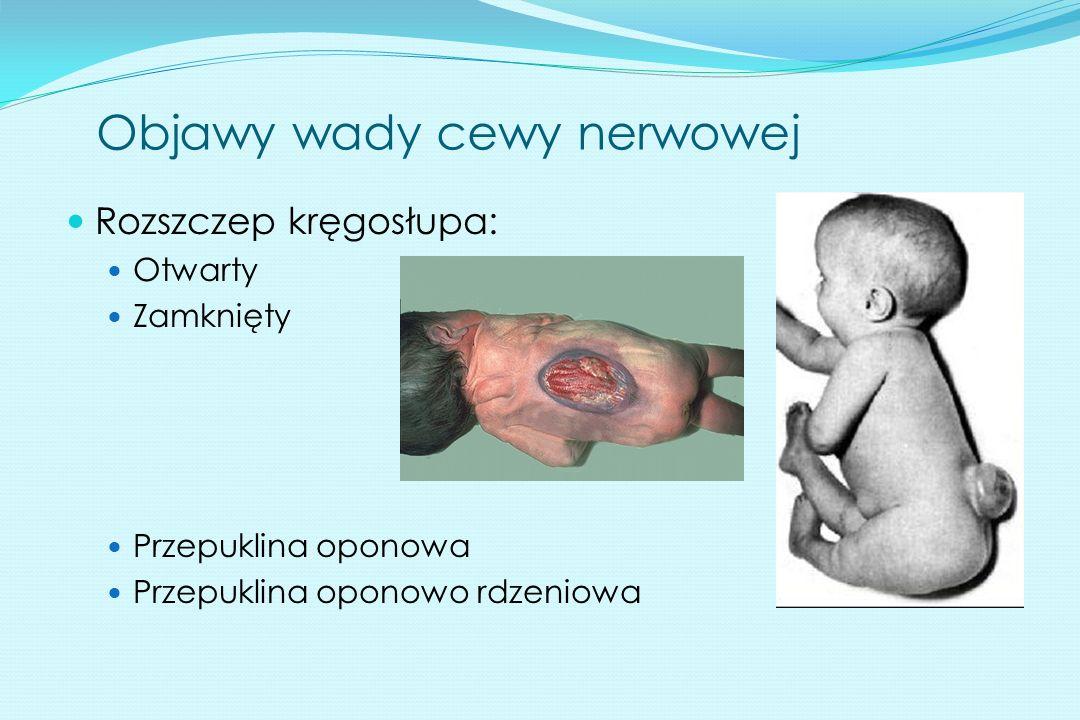 Objawy wady cewy nerwowej Rozszczep kręgosłupa: Otwarty Zamknięty Przepuklina oponowa Przepuklina oponowo rdzeniowa