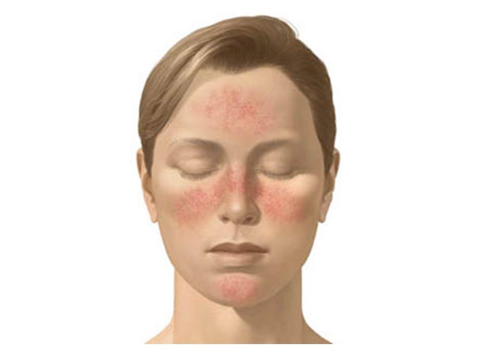 Leczenie ogólne trądziku różowatego zatwierdzone przez FDA Podstawowym antybiotykiem, tzw.