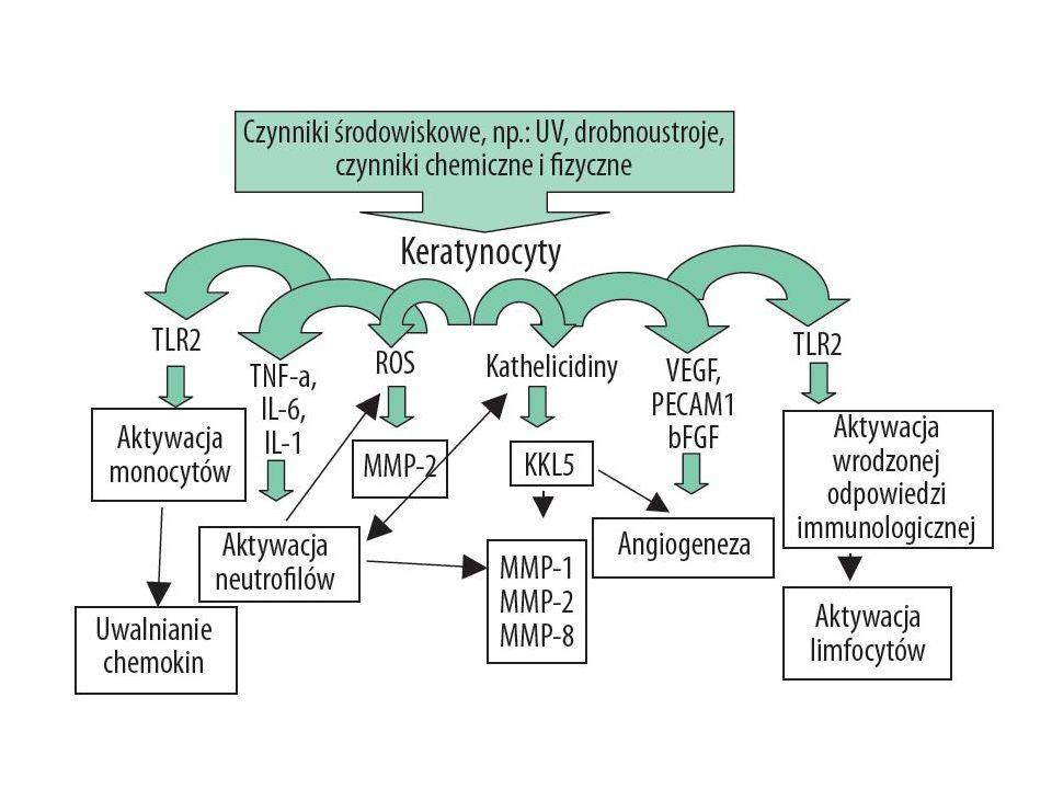 Helicobacter pylori Udział w patogenezie rosacea jest kontrowersyjny, a doniesienia w piśmiennictwie na ten temat są sprzeczne