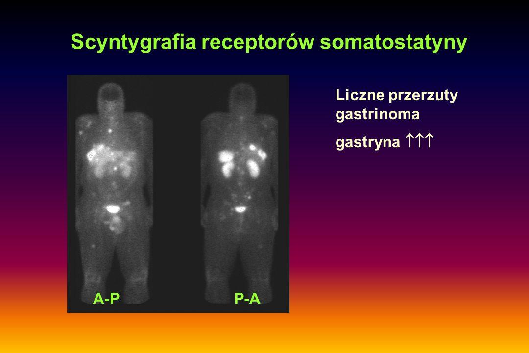 Scyntygrafia receptorów somatostatyny A-PP-A Liczne przerzuty gastrinoma gastryna 