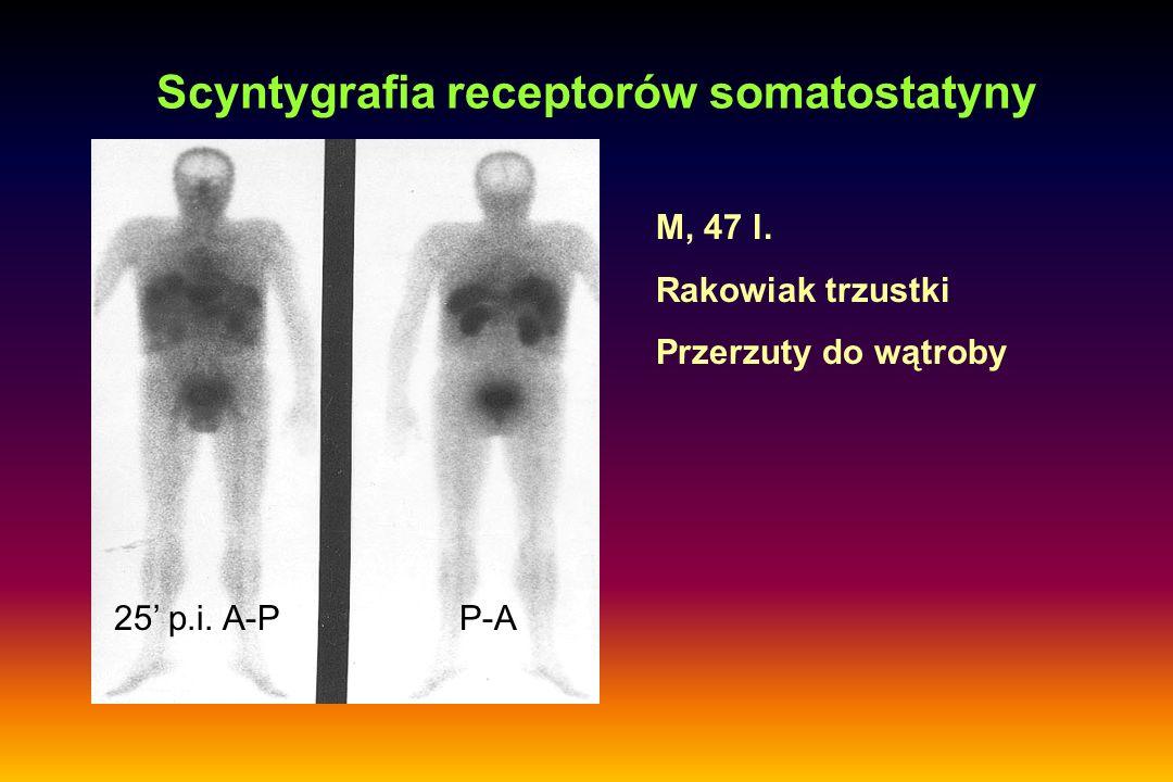 Scyntygrafia receptorów somatostatyny 25' p.i. A-PP-A M, 47 l. Rakowiak trzustki Przerzuty do wątroby
