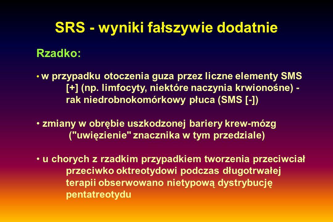 SRS - wyniki fałszywie dodatnie Rzadko: w przypadku otoczenia guza przez liczne elementy SMS [+] (np. limfocyty, niektóre naczynia krwionośne) - rak n