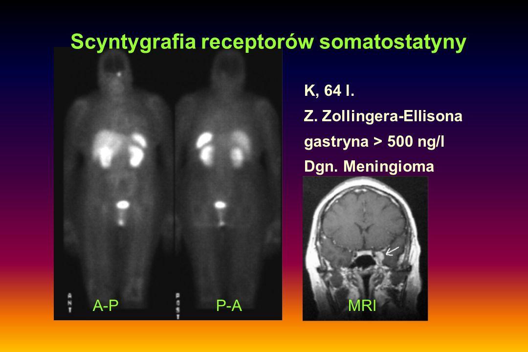K, 64 l. Z. Zollingera-Ellisona gastryna > 500 ng/l Dgn. Meningioma Scyntygrafia receptorów somatostatyny A-PP-AMRI