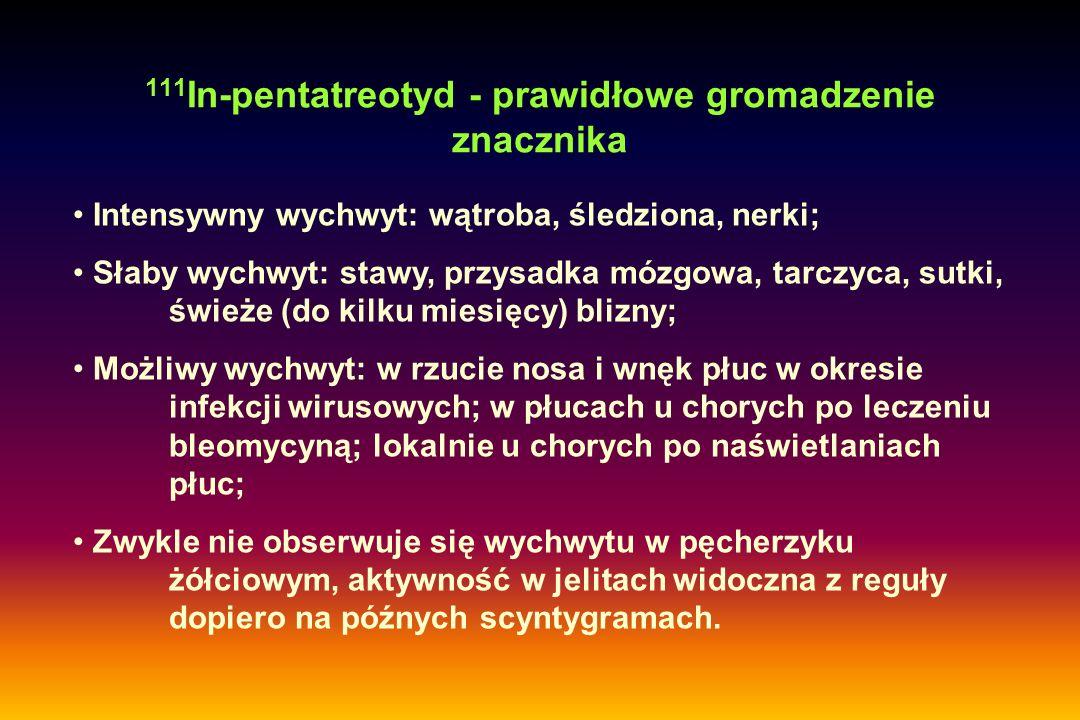 111 In-pentatreotyd - prawidłowe gromadzenie znacznika Intensywny wychwyt: wątroba, śledziona, nerki; Słaby wychwyt: stawy, przysadka mózgowa, tarczyc