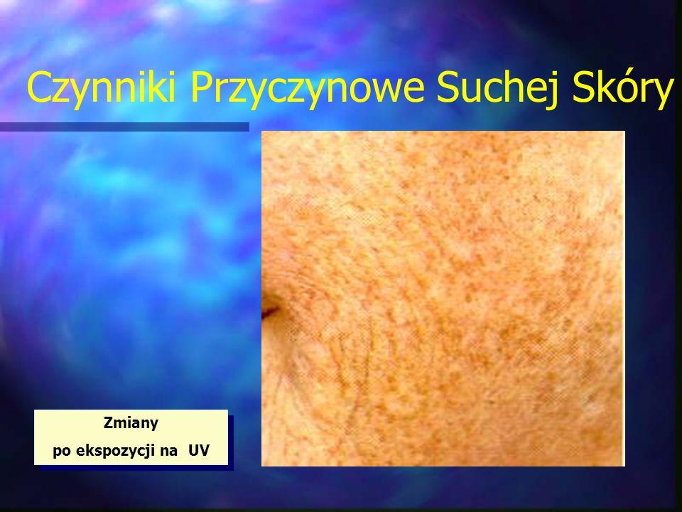 Czynniki Przyczynowe Suchej Skóry Zmiany po ekspozycji na UV Zmiany po ekspozycji na UV