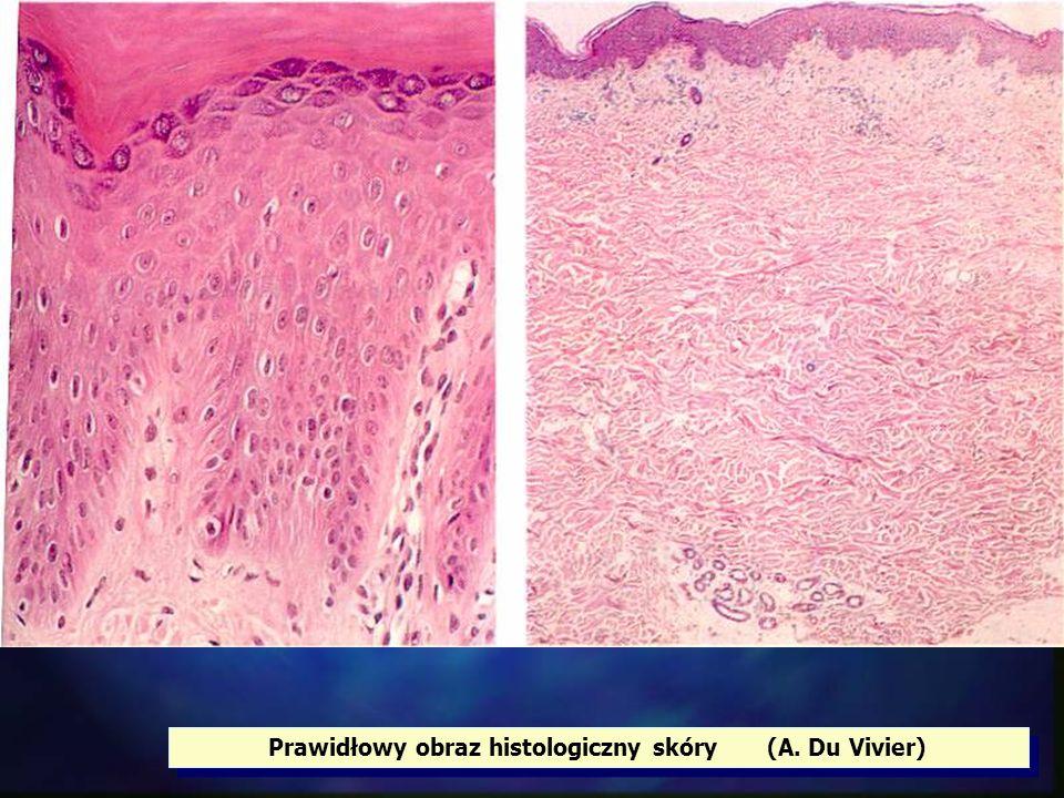 Prawidłowy obraz histologiczny skóry (A. Du Vivier)