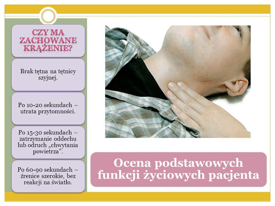 """Brak tętna na tętnicy szyjnej. Po 10-20 sekundach – utrata przytomności. Po 15-30 sekundach – zatrzymanie oddechu lub odruch """"chwytania powietrza"""". Po"""