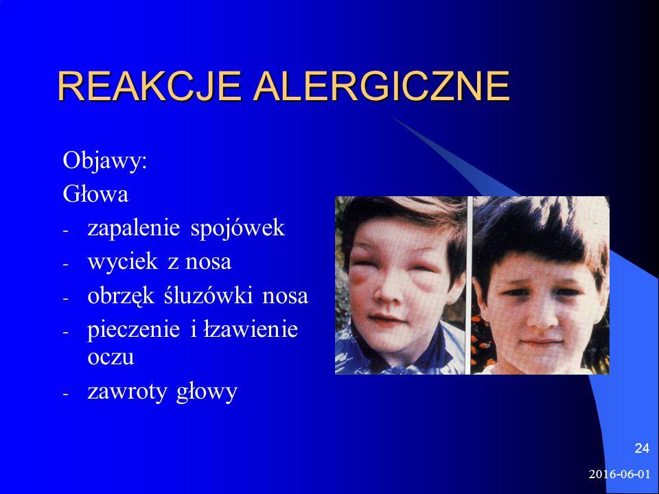 2016-06-01 24 REAKCJE ALERGICZNE Objawy: Głowa - zapalenie spojówek - wyciek z nosa - obrzęk śluzówki nosa - pieczenie i łzawienie oczu - zawroty głowy