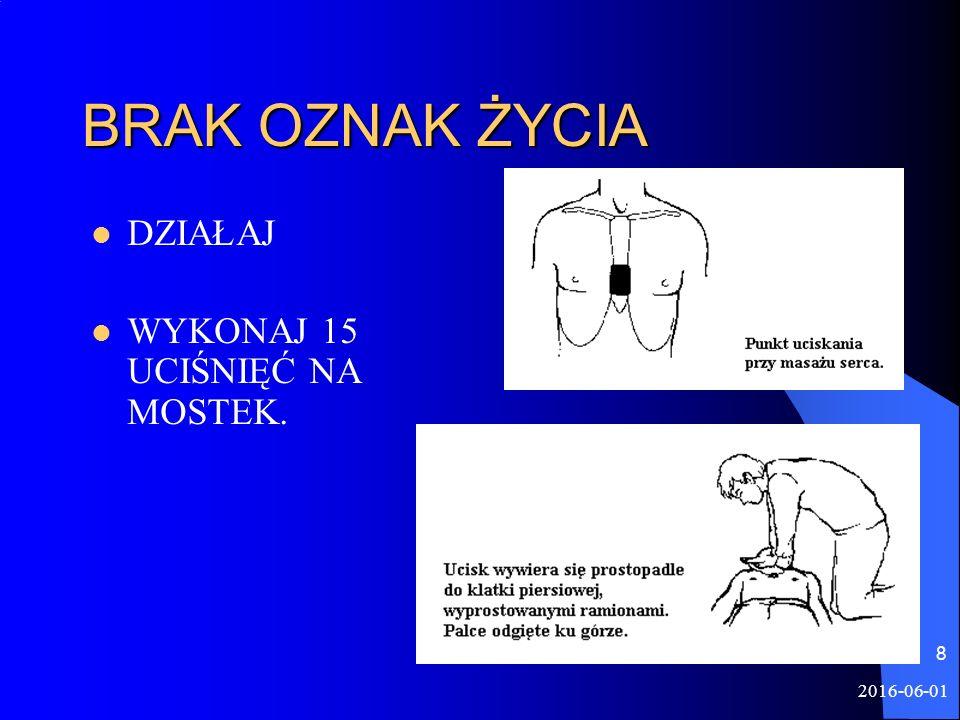 2016-06-01 8 BRAK OZNAK ŻYCIA DZIAŁAJ WYKONAJ 15 UCIŚNIĘĆ NA MOSTEK.