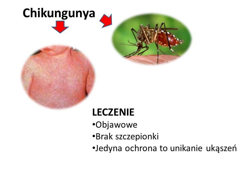 Chikungunya LECZENIE Objawowe Brak szczepionki Jedyna ochrona to unikanie ukąszeń