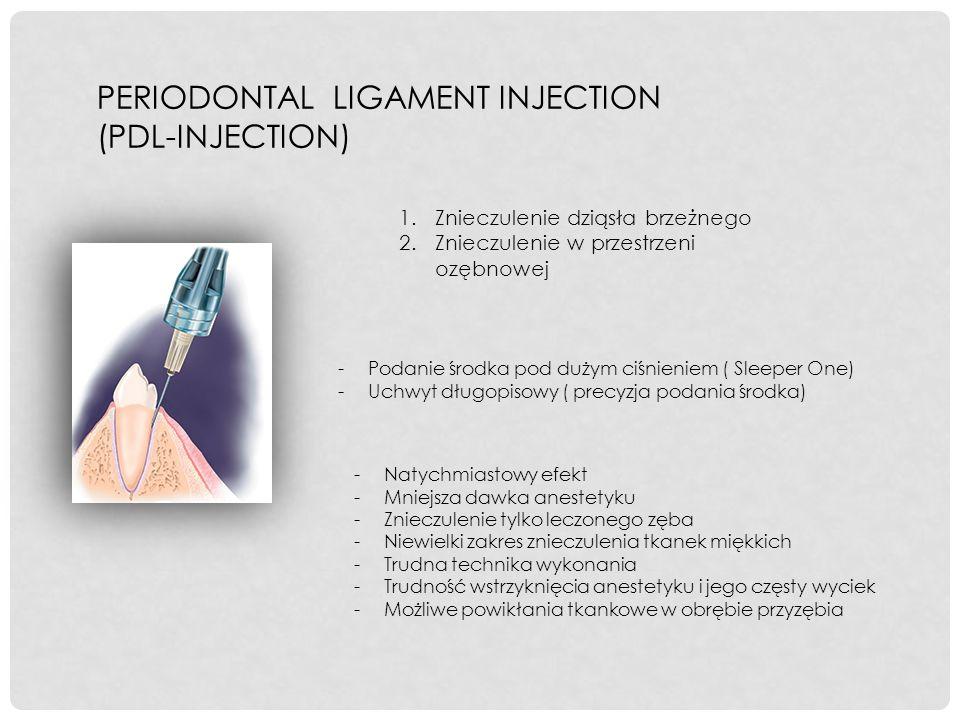 PERIODONTAL LIGAMENT INJECTION (PDL-INJECTION) 1.Znieczulenie dziąsła brzeżnego 2.Znieczulenie w przestrzeni ozębnowej -Podanie środka pod dużym ciśni
