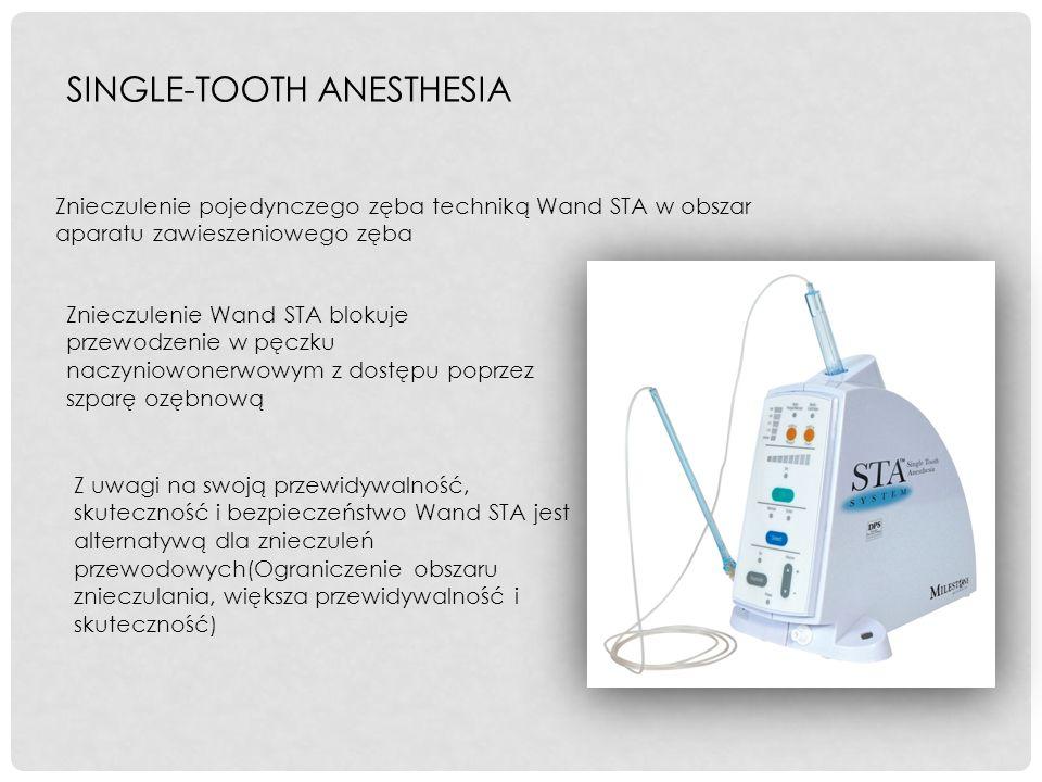 SINGLE-TOOTH ANESTHESIA Znieczulenie pojedynczego zęba techniką Wand STA w obszar aparatu zawieszeniowego zęba Znieczulenie Wand STA blokuje przewodze