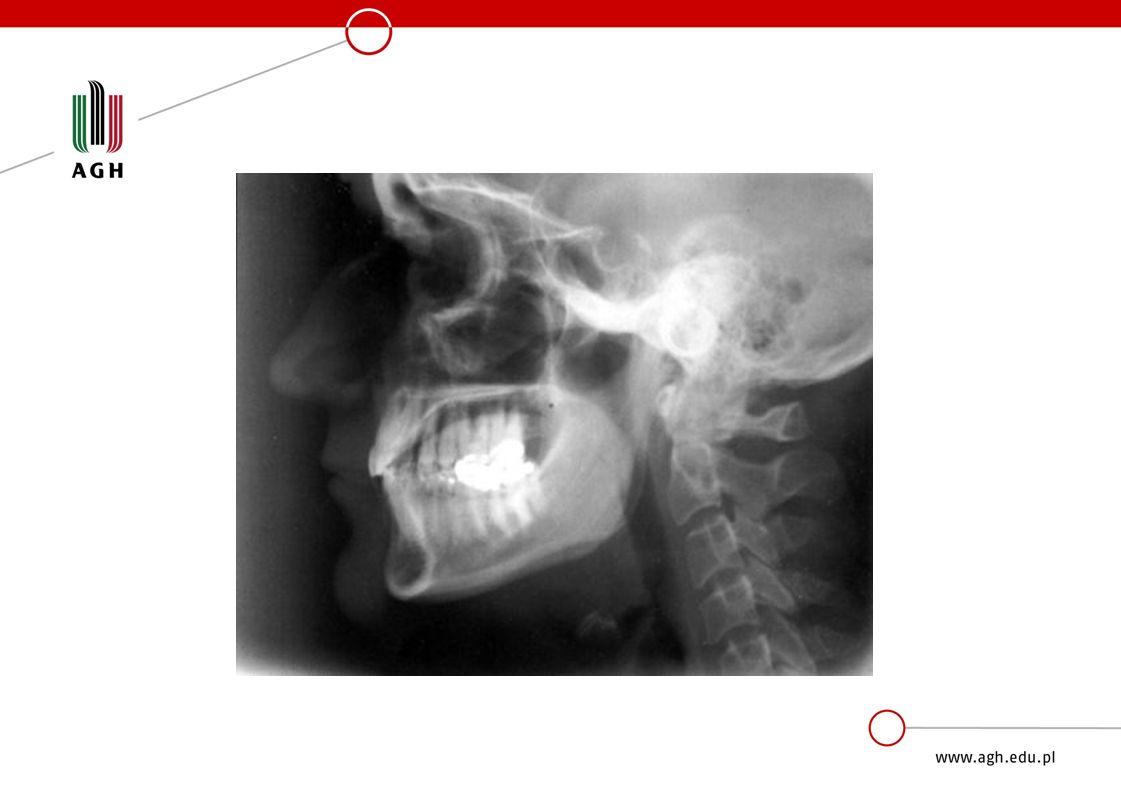 Zastosowanie promieni Roentgena »Medycyna: diagnostyka i terapia -prześwietlenia płuc, kości, obserwacji narządów -stomatologia -medycyna sądowa »Technika i przemysł -badanie uszkodzeń -kontrola materiałów, -sprawdzenie izolacji i uszkodzeń -kontrola połączeń nitowanych i spawanych -przemysł spożywczy i farmaceutyczny: wykrywanie zanieczyszczeń, brakujących elementów, kontrola poziomu napełnienia, napromieniowywanie żywności w celu jej utrwalania -Sterylizację promieniowaniem rentgenowskim stosuje się także w produkcji medycznych środków opatrunkowych czy nawet przesyłek pocztowych.