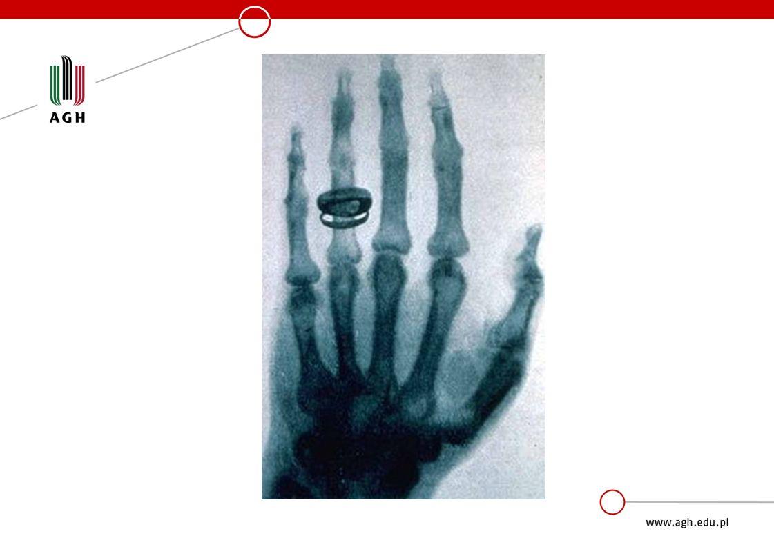 »Promieniowanie rentgenowskie jest szkodliwe »Promieniowanie X powoduje uszkodzenia szpiku kostnego, co może być przyczyną anemii.