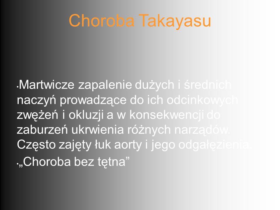 Choroba Takayasu Martwicze zapalenie dużych i średnich naczyń prowadzące do ich odcinkowych zwężeń i okluzji a w konsekwencji do zaburzeń ukrwienia ró
