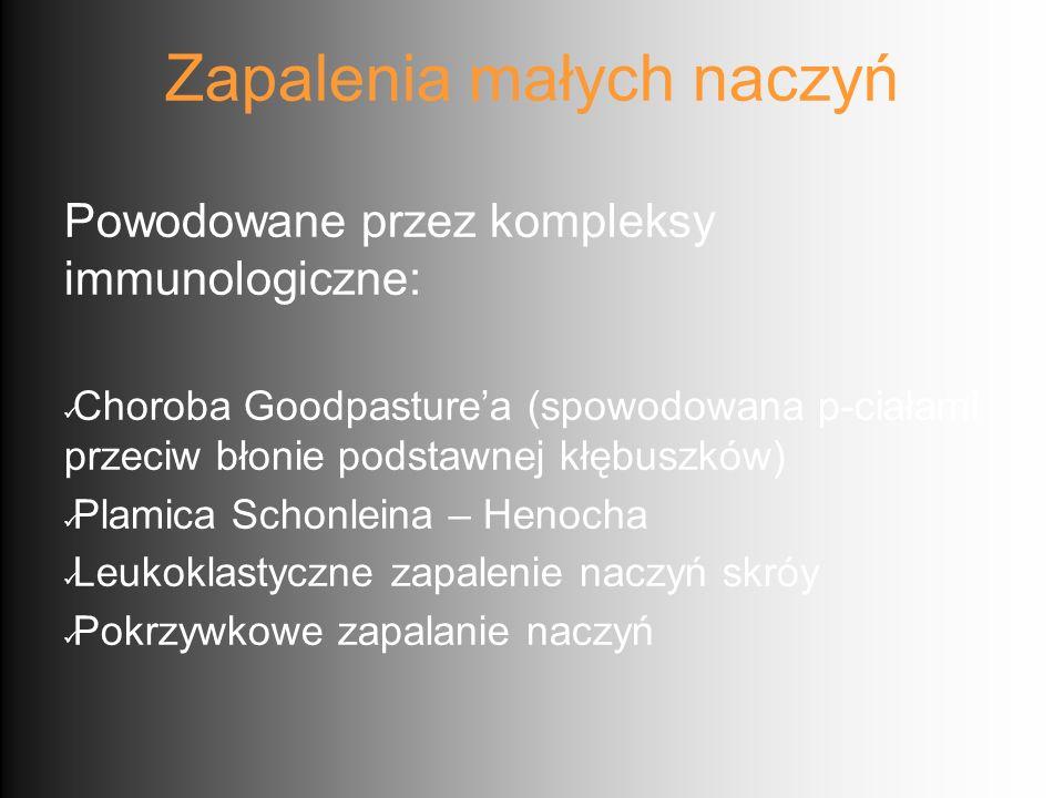 Zapalenia małych naczyń Powodowane przez kompleksy immunologiczne: Choroba Goodpasture'a (spowodowana p-ciałami przeciw błonie podstawnej kłębuszków)