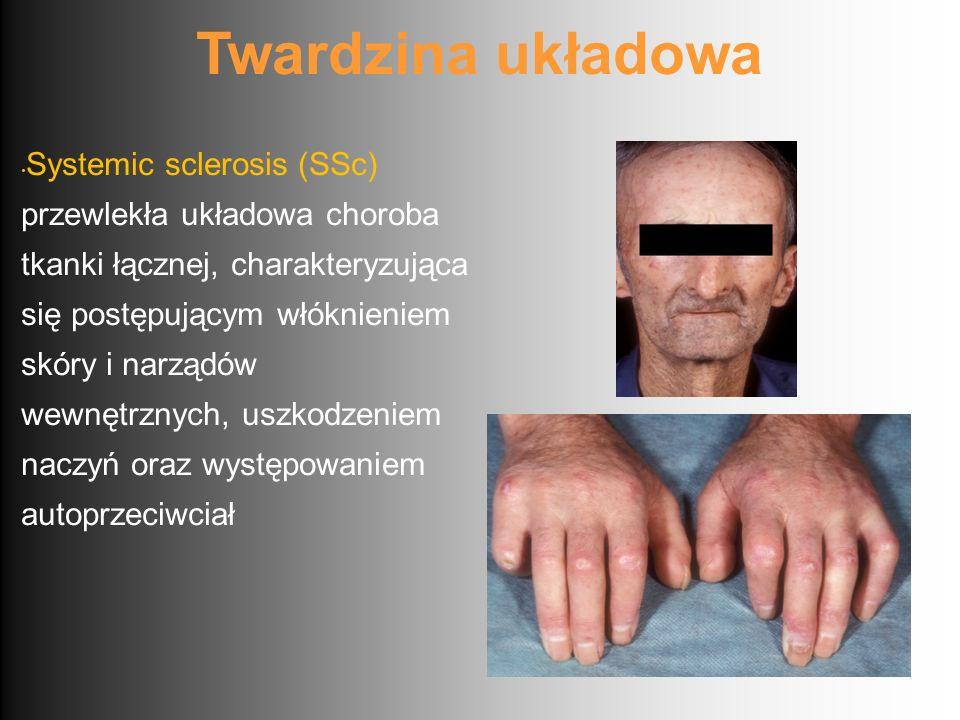 Twardzina układowa Systemic sclerosis (SSc) przewlekła układowa choroba tkanki łącznej, charakteryzująca się postępującym włóknieniem skóry i narządów