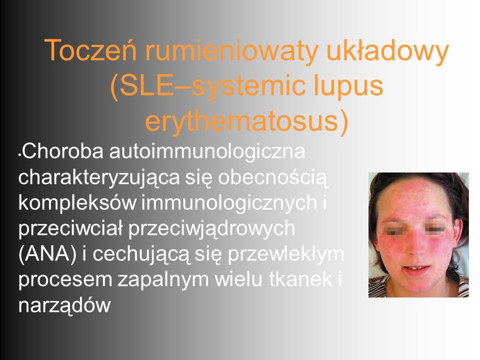 Toczeń rumieniowaty układowy Epidemiologia Częstość występowania w populacji europejskiej 25-39/100 tys osób Roczna zachorowalność 2-8/100 tys U około 50% SLE zaczyna się między 16 a 55 rż, u ok 20% przed 16 rż.