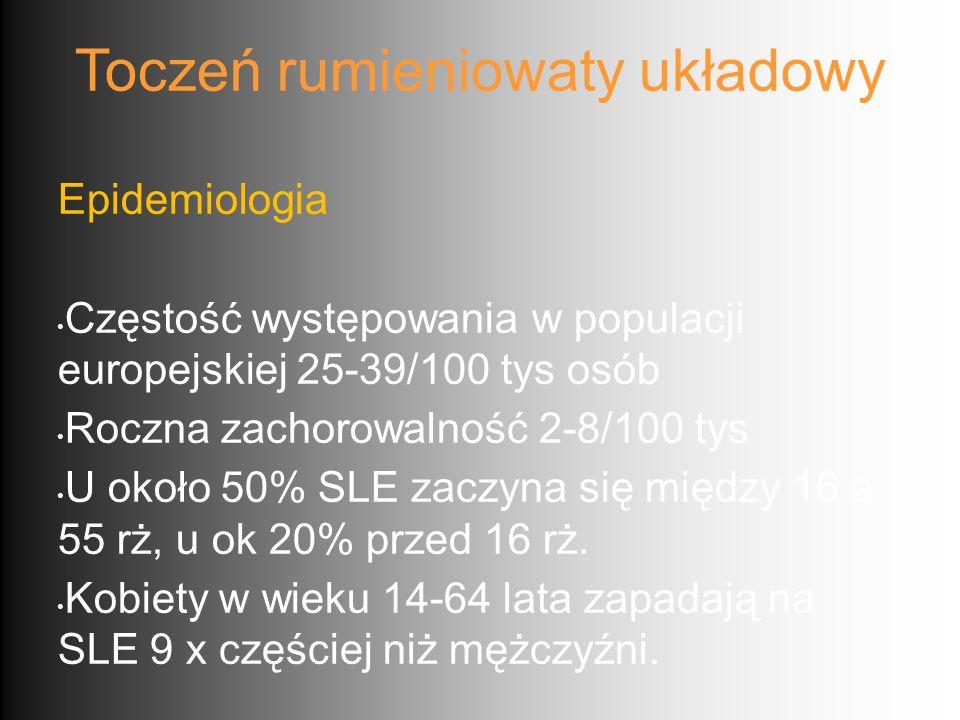 Toczeń rumieniowaty układowy Epidemiologia Częstość występowania w populacji europejskiej 25-39/100 tys osób Roczna zachorowalność 2-8/100 tys U około