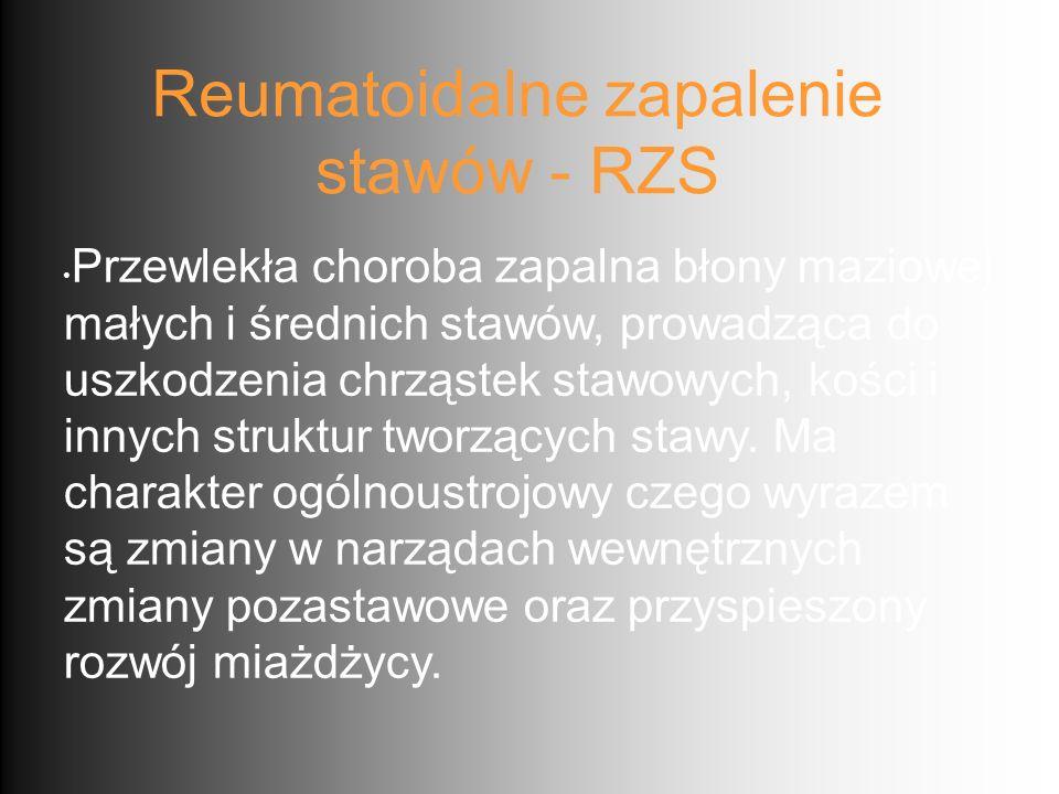 Reumatoidalne zapalenie stawów - RZS Przewlekła choroba zapalna błony maziowej małych i średnich stawów, prowadząca do uszkodzenia chrząstek stawowych