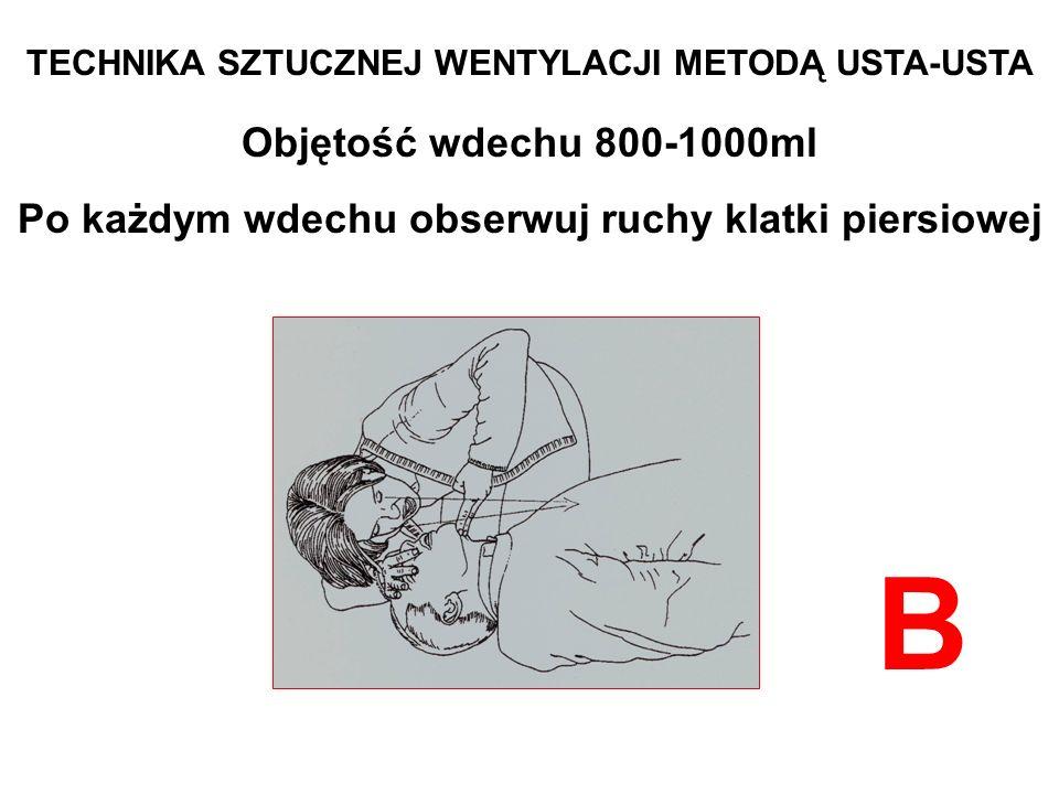 TECHNIKA SZTUCZNEJ WENTYLACJI METODĄ USTA-USTA Objętość wdechu 800-1000ml Po każdym wdechu obserwuj ruchy klatki piersiowej B