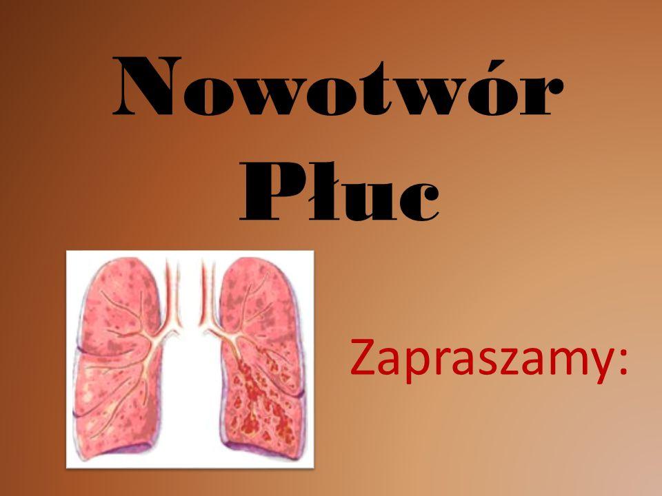 Nowotwór Płuc Zapraszamy: