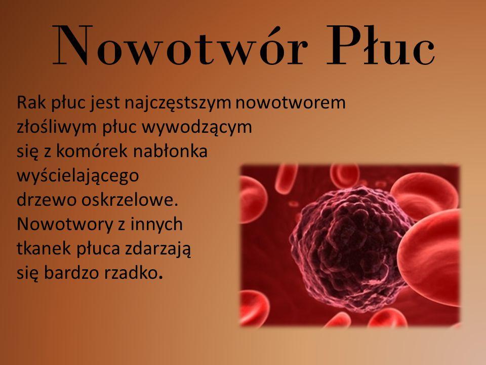 Nowotwór Płuc Rak płuc jest najczęstszym nowotworem złośliwym płuc wywodzącym się z komórek nabłonka wyścielającego drzewo oskrzelowe.