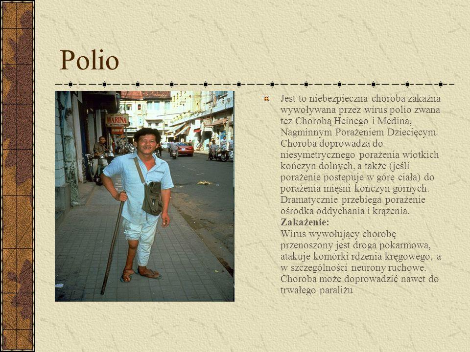 Polio Jest to niebezpieczna choroba zakaźna wywoływana przez wirus polio zwana tez Chorobą Heinego i Medina, Nagminnym Porażeniem Dziecięcym. Choroba