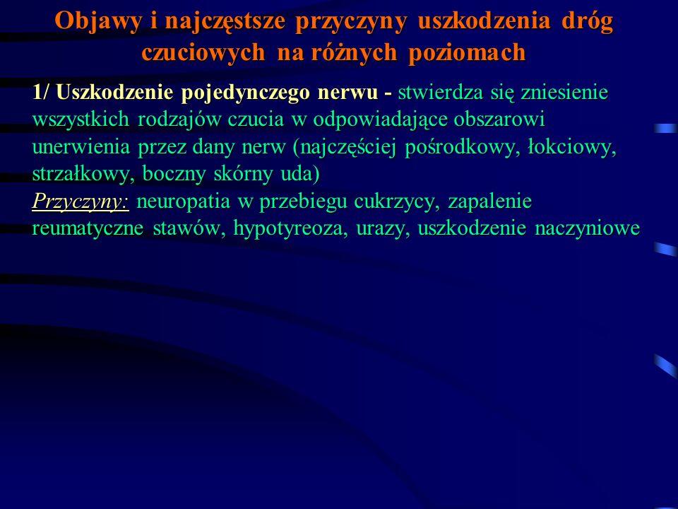 Zaburzenia czucia - pojęcia podstawowe Anestezja - zniesienie czucia dotyku Hipestezja - obniżenie czucia dotyku Hiperstezja (przeczulica) - nadmierne odczuwanie dotyku Analgezja - zniesienie czucia bólu Hipalgezja - obniżenie czucia bólu Hiperalgezja - przeczulica na bodźce bólowe Termoanalgezja - zniesienie czucia temperatury Termohipalgezja - obniżenie czucia temperatury Termohiperalgezja - nadmierna wrażliwość na bodźce cieplne Pallanastezja - zniesienie czucia wibracji Podejrzenie uszkodzenie kory płata ciemieniowego: czy chory potrafi zlokalizować bodziec na skórze (topognosis), rozróżnić dwa równocześnie działające bodźce (dyskryminacja, ekstynkcja), odczytać znaki pisane na skórze (dermoleksja)?
