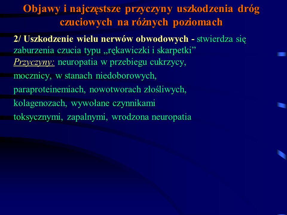 Objawy i najczęstsze przyczyny uszkodzenia dróg czuciowych na różnych poziomach 1/ Uszkodzenie pojedynczego nerwu - stwierdza się zniesienie wszystkich rodzajów czucia w odpowiadające obszarowi unerwienia przez dany nerw (najczęściej pośrodkowy, łokciowy, strzałkowy, boczny skórny uda) Przyczyny: neuropatia w przebiegu cukrzycy, zapalenie reumatyczne stawów, hypotyreoza, urazy, uszkodzenie naczyniowe