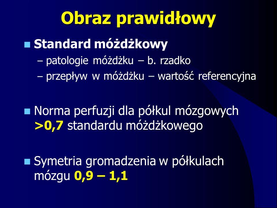 Obraz prawidłowy Standard móżdżkowy – patologie móżdżku – b. rzadko – przepływ w móżdżku – wartość referencyjna Norma perfuzji dla półkul mózgowych >0