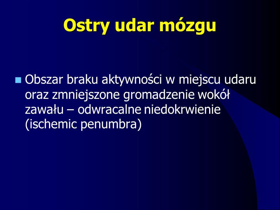 Ostry udar mózgu Obszar braku aktywności w miejscu udaru oraz zmniejszone gromadzenie wokół zawału – odwracalne niedokrwienie (ischemic penumbra)