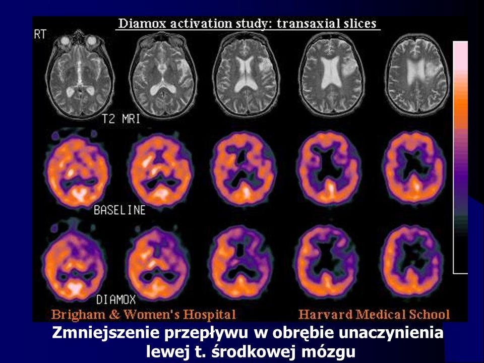 Zmniejszenie przepływu w obrębie unaczynienia lewej t. środkowej mózgu