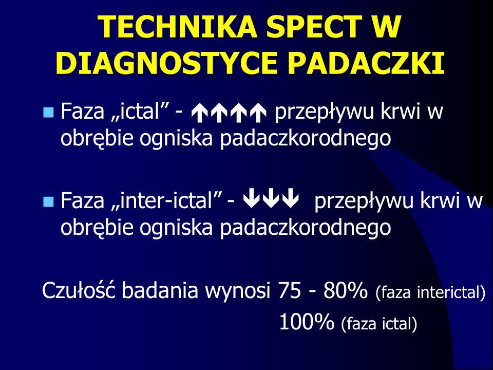 """TECHNIKA SPECT W DIAGNOSTYCE PADACZKI Faza """"ictal"""" -  przepływu krwi w obrębie ogniska padaczkorodnego Faza """"inter-ictal"""" -  przepływu krwi w o"""