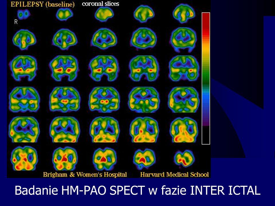 Badanie HM-PAO SPECT w fazie INTER ICTAL