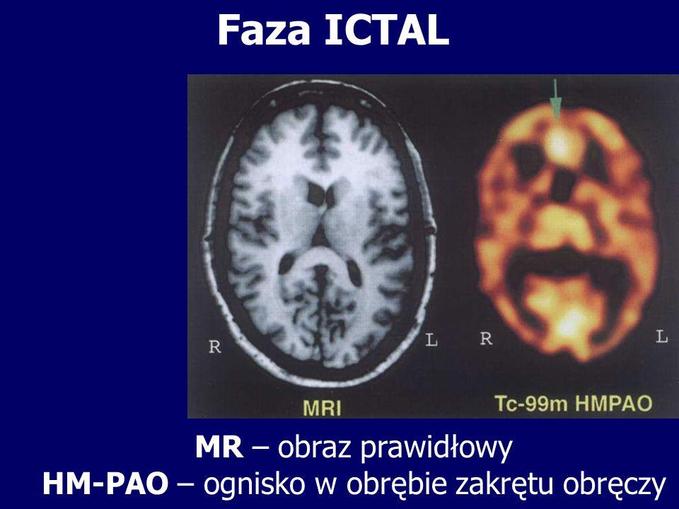 MR – obraz prawidłowy HM-PAO – ognisko w obrębie zakrętu obręczy Faza ICTAL