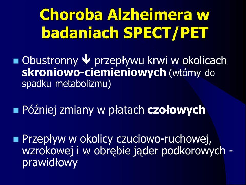Choroba Alzheimera w badaniach SPECT/PET Obustronny  przepływu krwi w okolicach skroniowo-ciemieniowych (wtórny do spadku metabolizmu) Później zmiany