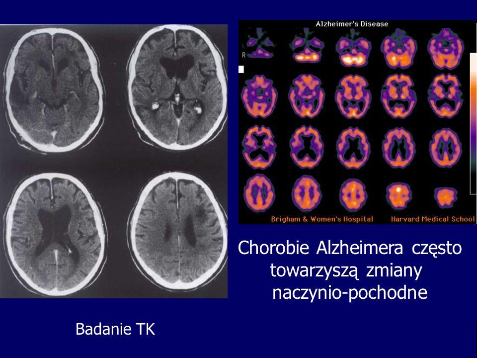 Chorobie Alzheimera często towarzyszą zmiany naczynio-pochodne Badanie TK