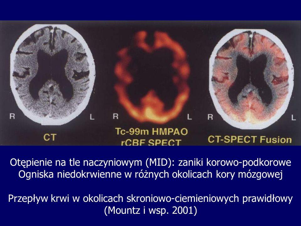 Otępienie na tle naczyniowym (MID): zaniki korowo-podkorowe Ogniska niedokrwienne w różnych okolicach kory mózgowej Przepływ krwi w okolicach skroniow