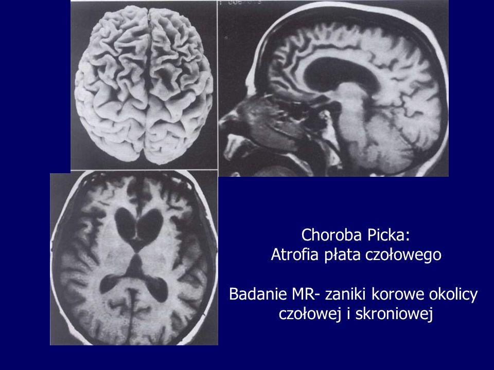 Choroba Picka: Atrofia płata czołowego Badanie MR- zaniki korowe okolicy czołowej i skroniowej