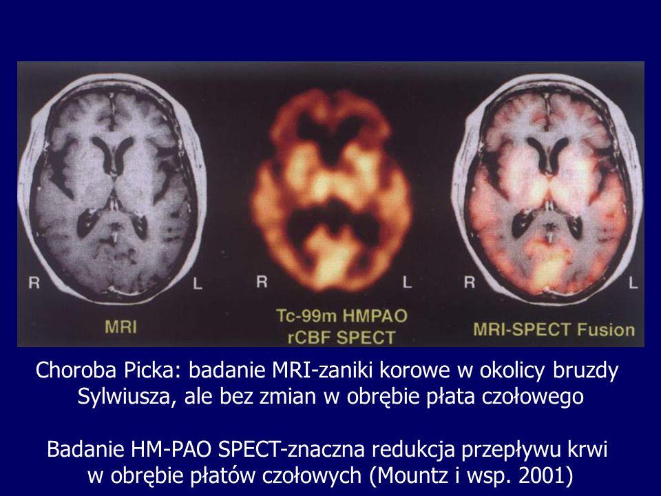 Choroba Picka: badanie MRI-zaniki korowe w okolicy bruzdy Sylwiusza, ale bez zmian w obrębie płata czołowego Badanie HM-PAO SPECT-znaczna redukcja prz