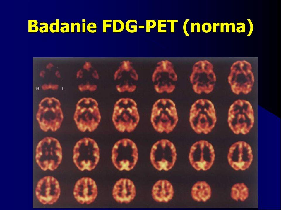 Badanie FDG-PET (norma)