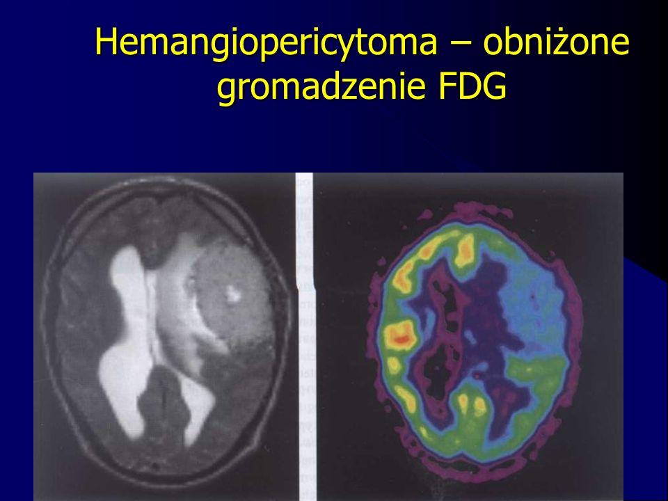 Hemangiopericytoma – obniżone gromadzenie FDG