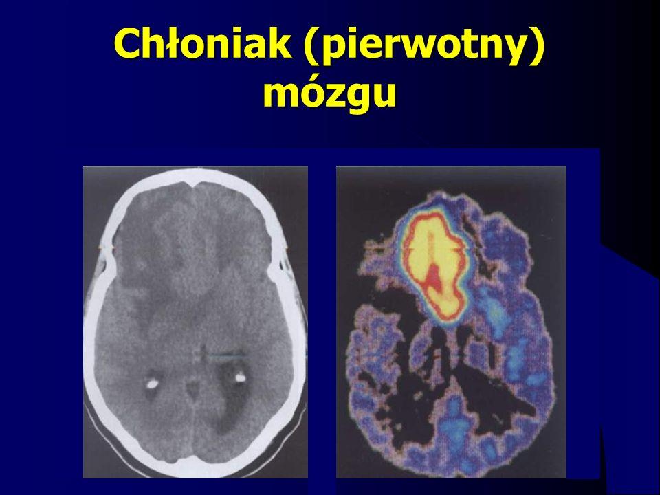 Chłoniak (pierwotny) mózgu