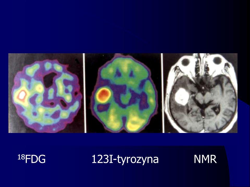 18 FDG 123I-tyrozyna NMR