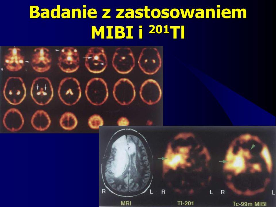 Badanie z zastosowaniem MIBI i 201 Tl