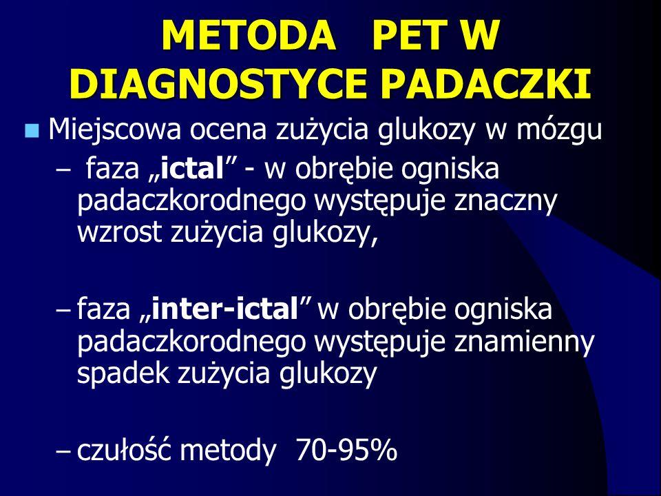 """METODA PET W DIAGNOSTYCE PADACZKI Miejscowa ocena zużycia glukozy w mózgu – faza """"ictal"""" - w obrębie ogniska padaczkorodnego występuje znaczny wzrost"""