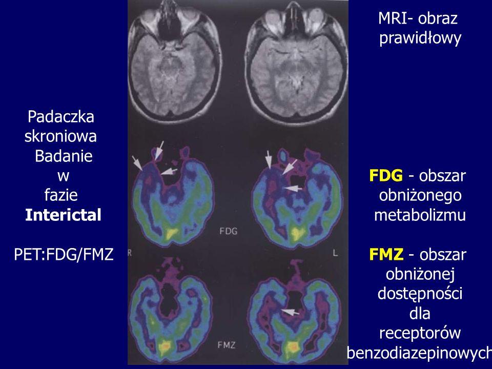 Padaczka skroniowa Badanie w fazie Interictal PET:FDG/FMZ MRI- obraz prawidłowy FDG - obszar obniżonego metabolizmu FMZ - obszar obniżonej dostępności