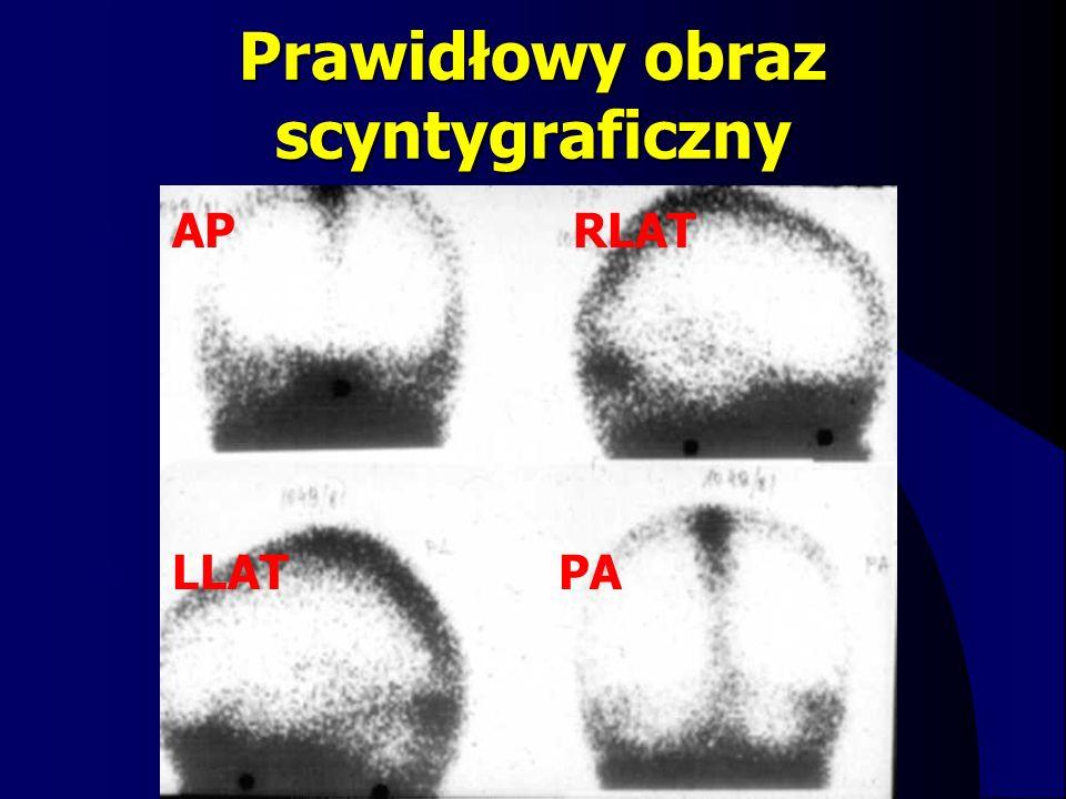 Prawidłowy obraz scyntygraficzny AP RLAT LLAT PA