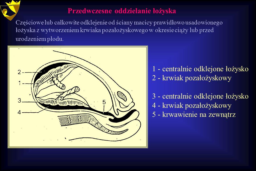 1 - centralnie odklejone łożysko 2 - krwiak pozałożyskowy 3 - centralnie odklejone łożysko 4 - krwiak pozałożyskowy 5 - krwawienie na zewnątrz Przedwc